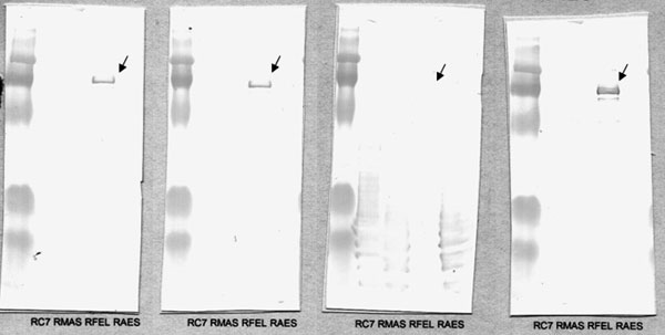 Western blot after cross-adsorption with (left to right) Rickettsia conorii, R. massiliae, R. felis, and R. aeschlimannii. When cross-adsorption is performed with R. felis, the specific antigen-corresponding line disappears, which indicates R. felis as the causative microorganism.