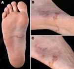 Thumbnail of Right foot of a patient from Brittany, France, with a hookworm-related cutaneous larva migrans, showing an elevated serpiginous lesion on the sole of the foot (panels A, B) and ulcerative lesions at the origin of the lesions on the lateral side of the foot (panel C).