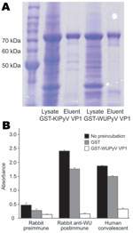 Thumbnail of ELISA using WU polyomavirus (WUPyV) viral protein 1 (VP1) or KI polyomavirus (KIPyV) VP1 as the target antigen. A) Coomassie blue staining of a sodium dodecyl sulfate–polyacrylamide gel that contains bacterially expressed glutathione S-transferase (GST)–KIPyV VP1 and GST–WUPyV VP1 before and after glutathione-affinity purification. B) ELISA using rabbit hyperimmune serum and human WU polyomavirus convalescent-phase serum preincubated with buffer alone, GST protein, or GST–WUPyV VP1. Error bars indicate mean and SD.