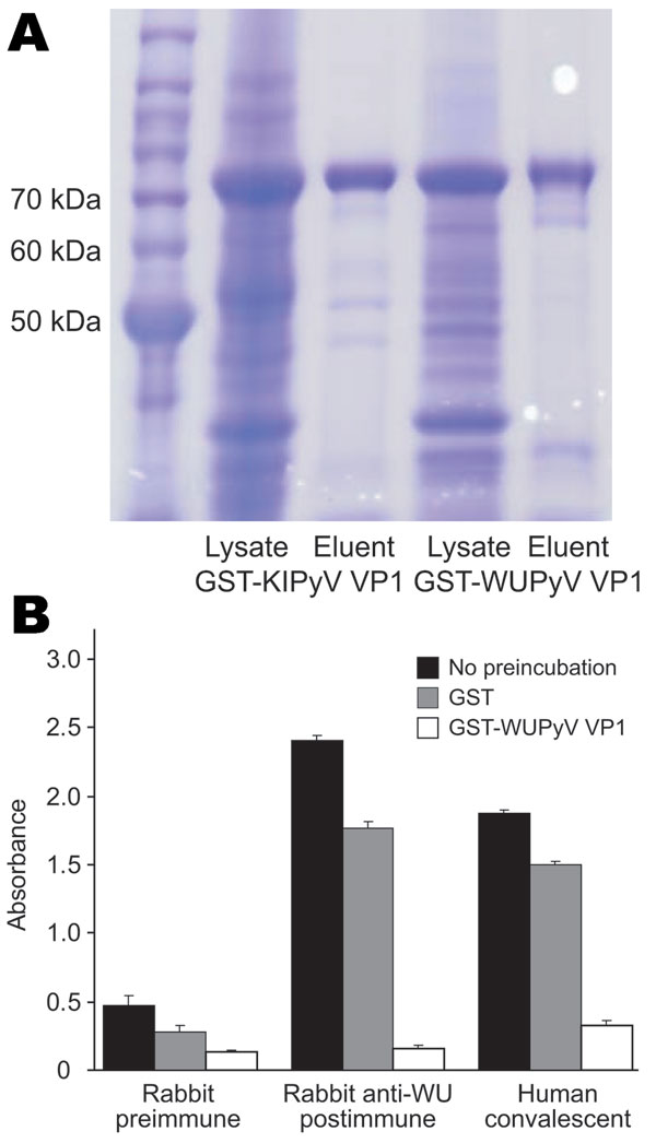 ELISA using WU polyomavirus (WUPyV) viral protein 1 (VP1) or KI polyomavirus (KIPyV) VP1 as the target antigen. A) Coomassie blue staining of a sodium dodecyl sulfate–polyacrylamide gel that contains bacterially expressed glutathione S-transferase (GST)–KIPyV VP1 and GST–WUPyV VP1 before and after glutathione-affinity purification. B) ELISA using rabbit hyperimmune serum and human WU polyomavirus convalescent-phase serum preincubated with buffer alone, GST protein, or GST–WUPyV VP1. Error bars indicate mean and SD.
