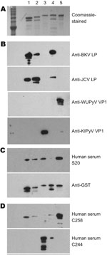 Thumbnail of Results of patient serum sample Western blotting for polyomaviruses. A) Coomassie blue–stained image showing 5 types of purified glutathione S-transferase (GST)–tagged viral protein 1 (VP1) in a sodium dodecyl sulfate–polyacrylamide gel. Lane 1, GST-BKV VP1; lane 2, GST-JCV VP1; lane 3, GST–KI polyomavirus (KIPyV) VP1; lane 4, GST-SV40 VP1; lane 5, GST–WU polyomavirus (WUPyV) VP1. B) Western blot results using control rabbit antiserum against BK virus-like particles (BKVLP), JC virus-like particles (JCVLP), WUPyV VP1, or KIPyV VP1 as primary antibody. C) Western blot results for serum that was positive (S20) for WU polyomavirus and KI polyomavirus by ELISA. Antibody against GST was used as a loading control. D) Western blot result for serum that was ELISA positive for WU (C258) and KI (C244).