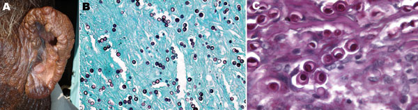 A) Multiple, confluent, keloid-like, hyperchromic nodules with flat shiny surfaces involving the entire free border, posterior aspect, and lobule of the left ear of a fisherman, Venezuela. B) Numerous Lacazia loboi tissue-phase organisms within the stroma. Note the typical chain pattern showing simple gemation budding (Gomori-Grocott stain, magnification ×100). C) Yeast cells showing typical double refraction of the membrane and protoplasmic bodies within cells (periodic acid–Schiff stain, magnification ×600).