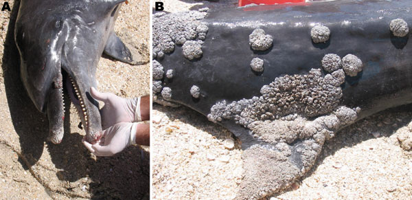 Extensive lobomycosis-like disease on the beak (A) and dorsal fin (B) of a bottlenose dolphin (Tursiops truncatus) stranded on Margarita Island, Venezuela.