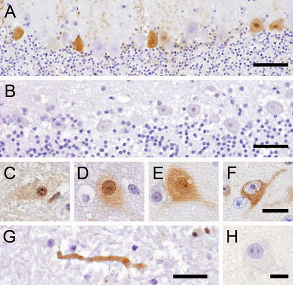 Avian bornavirus protein demonstrated by immunohistochemical testing in the central nervous system of birds with proventricular dilatation disease (PDD). A) within nuclei, cytoplasm and dendrites of several Purkinje cells of the cerebellum, bar = 50 µm; B) negative control: no immunoreactivity of Purkinje cells in a PDD-negative bird, bar = 50 µm; C–F), different phenotypes of positive neurons: C) within neurons, viral protein is expressed within intranuclear inclusion bodies; D) diffusely withi