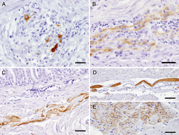 Avian bornavirus protein demonstrated by immunohistochemical testing in extracerebral locations. A) within neurons of proventricular intramural vegetative ganglia with inflammatory infiltration, bar = 25 µm; B) within nerve fibers of the myenteric plexus of gizzard, bar = 25 µm; C) within smooth muscle fibers of the proventricular wall, bar = 50 µm; D) within a modified muscle fiber of the conductive system of the heart, bar = 50 µm; E) within myocardiocytes, bar = 25 µm.