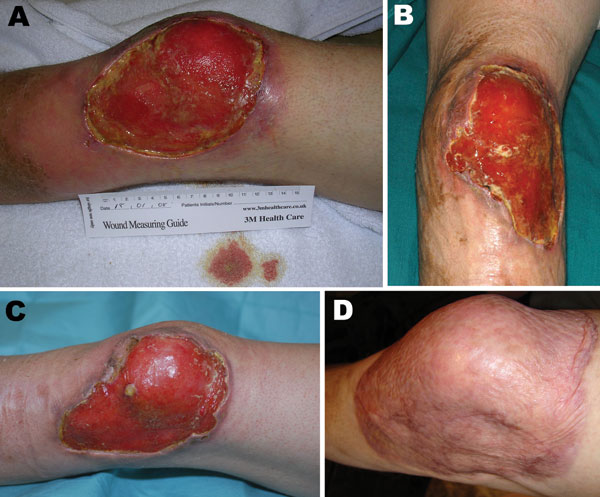 Progression of Buruli ulcer adjacent to the left knee of United Kingdom tourist after returning from Latin America. A) November 2007, on patient's return to the United Kingdom; B) January 2008, before Mycobacterium ulcerans therapy; C) April 2008, after 12 weeks of antimicrobial drug therapy; D) January 2009, 9 months after split-skin grafting.