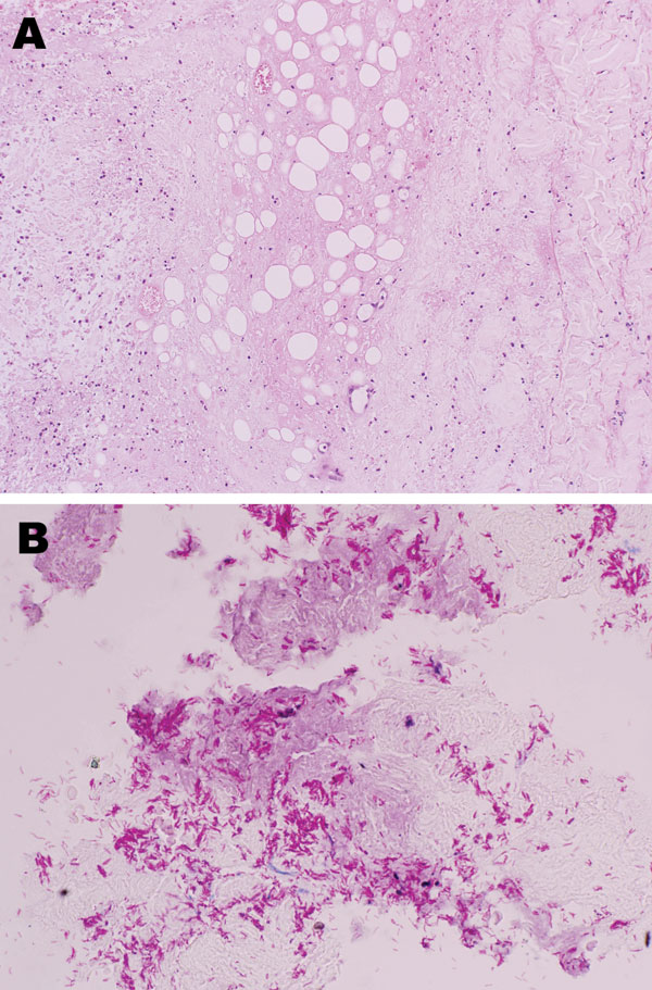Histologic analysis showing necrosis of subcutaneous fat and deep dermal tissue of the patient. A) Noninflammatory infarction-like necrosis related to cytopathic effect of the mycolactone toxin secreted by Mycobacterium ulcerans. B) Abundant mycobacteria within the necrosis.