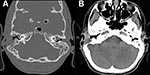Thumbnail of Computed tomography images of a patient with Mycobacterium abscessus otomastoiditis. Extensive bone destruction in the right mastoid and associated right-sided mucosal swelling can be seen. A) Bone tissue window setting; B) soft tissue window setting.