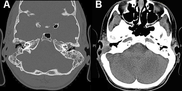Computed tomography images of a patient with Mycobacterium abscessus otomastoiditis. Extensive bone destruction in the right mastoid and associated right-sided mucosal swelling can be seen. A) Bone tissue window setting; B) soft tissue window setting.