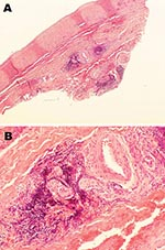 Thumbnail of Histopathologic appearance of abdominal aortic biopsy sample from 35-year-old mink farmer in Denmark who had been exposed to Aleutian mink disease parvovirus−infected mink for 10 years (patient 1). A) Perivascular, adventitial lymphoplasmacytoid infiltration. Original magnification ×4. B) Minimal atherosclerotic changes. Original magnification ×20.
