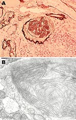 Thumbnail of Histopathologic appearance of renal biopsy sample from 54-year-old mink farmer in Denmark who had been exposed to Aleutian mink disease parvovirus−infected mink for 34 years (patient 2). A) Glomeruli with hypercellularity and crescents. Original magnification ×20. B) Electron microscopy showing distinct extracellular deposits of coarse 20-nm fibrils (microtubular structures) characterized as immunotactoid glomerulopathy. Original magnification ×100,000.