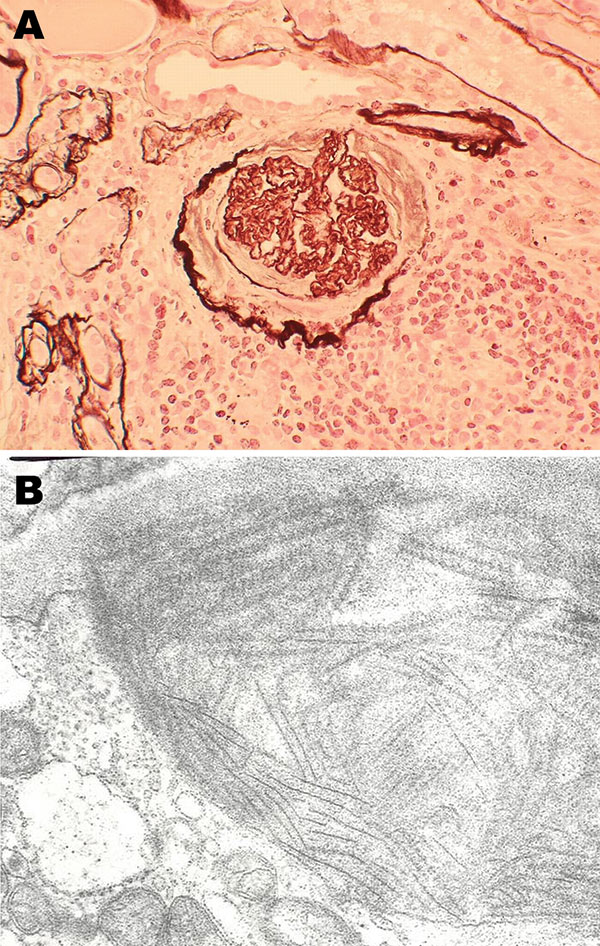 Histopathologic appearance of renal biopsy sample from 54-year-old mink farmer in Denmark who had been exposed to Aleutian mink disease parvovirus−infected mink for 34 years (patient 2). A) Glomeruli with hypercellularity and crescents. Original magnification ×20. B) Electron microscopy showing distinct extracellular deposits of coarse 20-nm fibrils (microtubular structures) characterized as immunotactoid glomerulopathy. Original magnification ×100,000.