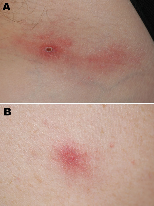 Inoculation eschar on left inguinal fold (A) and vesicular skin lesion (B) in a traveler recently returned to France from Ethiopia.