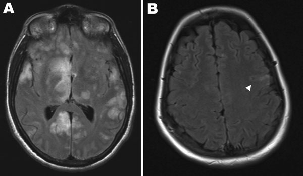 Magnetic resonance imaging scans of the brains of 2 patients with Hendra virus encephalitis, Australia, 2008. A) Patient 1 on day 18 of illness, showing cortical and subcortical hyperintense foci. <!-- INSERT SHAPE -->B) Patient 2 on day 25 of illness, showing hyperintense foci in the left precentral gyrus (arrowhead).