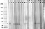 Thumbnail of Western blot analysis of serum reactivity to Enterocytozoon bieneusi proteins, Czech Republic. Serum selection: HIV-positive persons (indirect fluorescence antibody [IFA] assay titers >400); blood donors, professionals with risk exposure (IFA titers >200). Serum samples diluted 1:100. Molecular weight markers (Precision Plus Protein Standard, Bio-Rad Laboratories, Hercules, CA, USA): lane 1, positive control (HIV/AIDS patient with proved E. bieneusi infection); lane 2, negativ