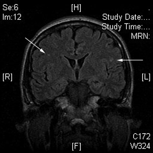 Magnetic resonance imaging of the brain of patient B, showing several nonspecific areas of enhancement (arrows), which suggests encephalitis, given the clinical scenario.