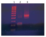 Thumbnail of HaeIII digestion of adenovirus 36 (Adv 36) DNA PCR products of the patient. Lane 1, molecular size marker; lane 2, HaeIII digest of Adv 36 DNA; lane 3, undigested Adv 36 DNA.