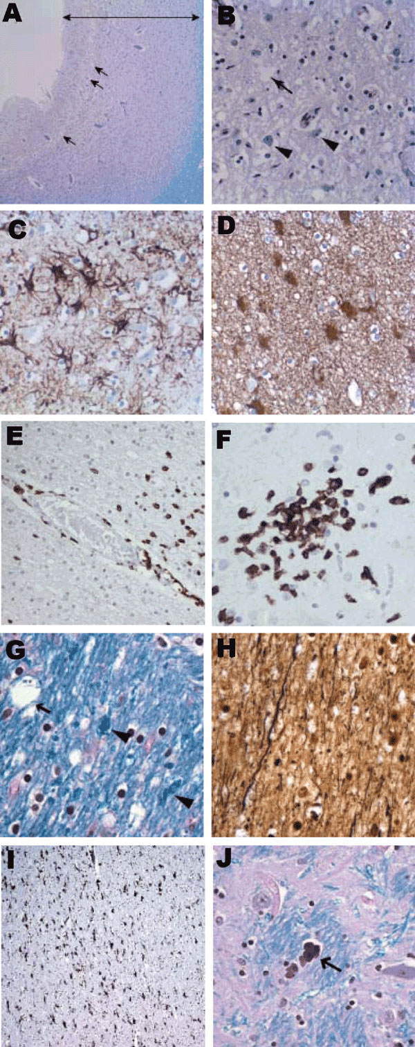 Histologic findings from brain of 15-year-old boy with X-linked agammaglobulinemia and encephalitis. A) Frontal cortex with cortical thinning (double-headed arrow) and vacuolation (arrows) (Luxol fast blue stain with periodic acid–Schiff method [LFB/PAS], original magnification ×10). B) Frontal cortex with vacuolation (arrow) and rare residual neurons (arrowheads) (LFB/PAS, original magnification ×50). C) Marked astrogliosis in the frontal cortex (glial fibrillary acidic protein [GFAP] immunosta