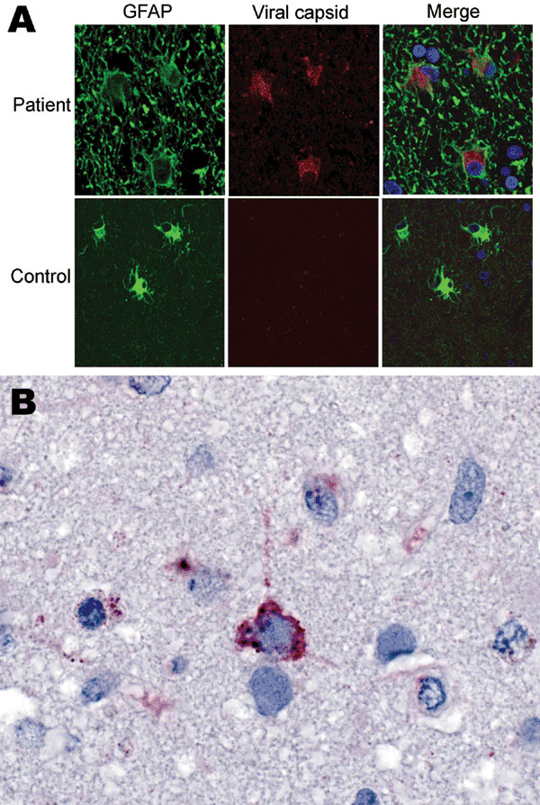 Immunofluorescence and immunohistochemical analyses with human astrovirus Puget Sound capsid antibodies. A) Indirect double immunofluorescence–stained, formalin-fixed, paraffin-embedded tissue sections from 15-year-old boy with X-linked agammaglobulinemia and astrovirus encephalitis and a control with astrogliosis not caused by astrovirus infection. The sections were stained for the astrocyte marker glial fibrillary acidic protein (GFAP, green) and for viral capsid protein (rabbit serum 1:1,000,