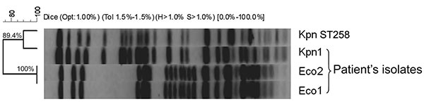 Pulsed-field gel electrophoresis demonstrating genetic relatedness of study isolates Eco2, Eco1, and Kpn1, and a representative Klebsiella pneumoniae isolate of the epidemic clone, Kpn ST258, Israel, 2008. Bacterial DNA was prepared and cleaved with 20U SpeI endonuclease (New England Biolabs, Beverly, MA, USA), followed by electrophoresis in a CHEF-DR III apparatus (Bio-Rad Laboratories, Inc., Hercules, CA, USA), as described (4). The macrorestriction patterns of the isolates were compared accor