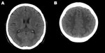 Thumbnail of Computed tomography images of the brain of an adult patient with pandemic (H1N1) 2009 virus infection and neurologic signs. A noncontrast study showed hypodense lesions in both occipital lobes (A) and in both upper parietal lobes (B).