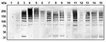 Thumbnail of Detection of high molecular weight PitB polymers in invasive isolates of Streptococcus pneumoniae. Western blot of cell wall extract from strains R6 (lane 1), GA47901 (lane 2), GA13444 (lane 3), GA47077 (lane 4), GA47340 (lane 5), GA47784 (lane 6), GA47368 (lane 7). GA47751 (lane 8), GA47187 (lane 9), GA11293 (lane 10), GA47628 (lane 11), GA49138 (lane 12), GA47434 (lane 13), GA47373 (lane 14), and GA47105 (lane 15) detected with anti-PitB antiserum. Marker sizes are indicated.