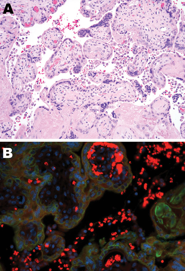 Tissue sample from 30-year-old primigravida patient exposed to seasonal influenza (H1N1). A) Intervillous (maternal) spaces with clusters/sheets of histiocytes (chronic intervillositis) and fibrotic fetal chorionic villi with Hofbauer cells–histiocytic inflammation (hematoxylin and eosin stain, original magnification ×200). B) Dual-stained immunofluorescent assay showing antibodies to influenza A virus (H1N1) (tetramethylrhodamine isothiocyanate, red) and cytokeratin (fluorescein isothiocyanate,