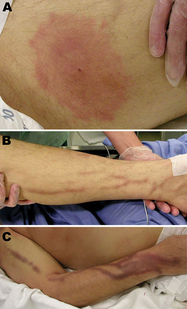 Lesions of the patient infected with Babesia divergens 1 day after hospitalization, Finland, 2004. A) Left thigh showing a classical erythema chronicum migrans lesion; B) left leg and C) right arm showing dark purple streaks.