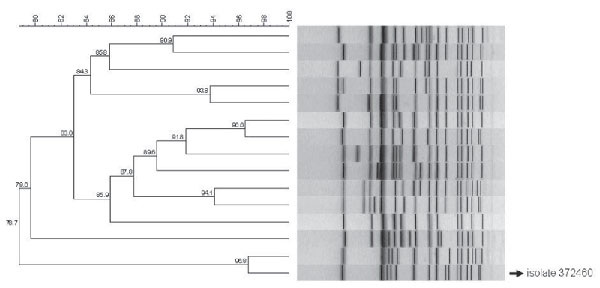 Dendrogram of pulsed-field gel electrophoresis patterns representative of the 15 largest clusters of Salmonella enterica serotype Typhi isolates identified in South Africa during 2005–2009. The pattern of isolate 372460 is indicated. Scale bar represents percentage similarity of pathogens.