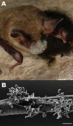 Thumbnail of A) Greater mouse-eared bat (Myotis myotis) with white fungal growth around its muzzle, ears, and wing membranes (photograph provided by Tamás Görföl). B) Scanning electron micrograph of a bat hair colonized by Geomyces destructans. Scale bar = 10 µm.