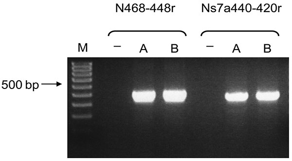 Bat coronavirus/Philippines/Dilliman1525G2/2008 mRNA in experimentally infected fruit bats, the Philippines. Reverse transcription–PCR results for small intestines of bats A and B. Lane M, 100-bp DNA ladder; lane –, nontemplate control.