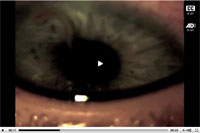 Thumbnail of . Linguatula serrata tongue worm swimming in an infected human eye. 