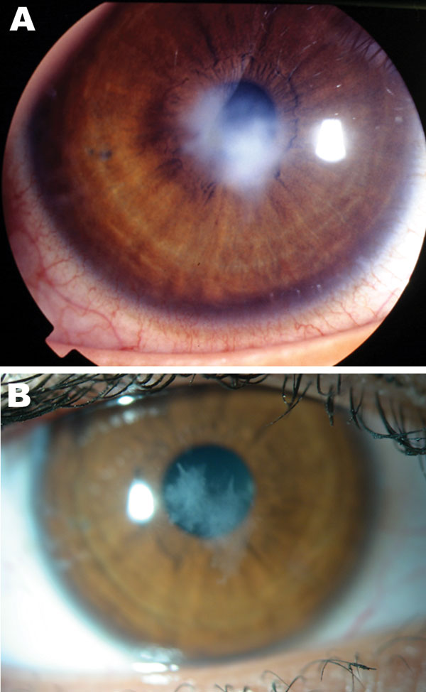 Ameba-associated keratitis in a 17-year-old woman (contact lens wearer), France, showing a paracentral corneal scar (A) and recovery at 13-month follow-up (B). Original magnification ×10.