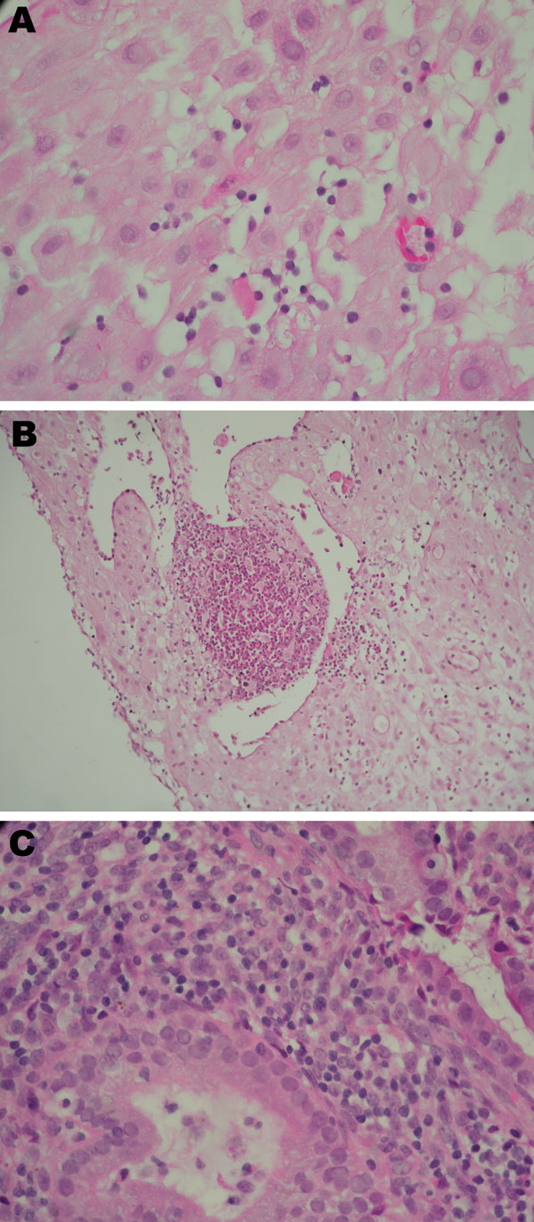 Placental histologic results (1) from 3 women with real-time PCR–positive results for Chlamydia trachomatis (Table 2). A) Case-patient 390; B) case-patient 235; C) case-patient 564. Histologic analysis shows different degree of periglandular lymphocytes infiltration, with a microabscess in B1. Original magnifications ×600 except B1 (×400).