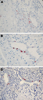 Thumbnail of Immunohistochemical analysis of placentas in Figure 1. These placentas were obtained from 3 patients positive for Chlamydia trachomatis by real-time PCR. A) case-patient 390; B) case-patient 235; C) case-patient 564. Immunohistochemical analysis demonstrated C. trachomatis–infected cells from endometrial glands. Original magnification ×600.