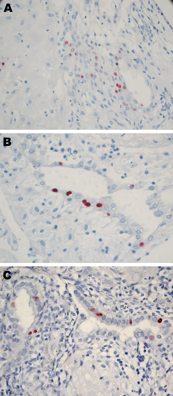 Immunohistochemical analysis of placentas in Figure 1. These placentas were obtained from 3 patients positive for Chlamydia trachomatis by real-time PCR. A) case-patient 390; B) case-patient 235; C) case-patient 564. Immunohistochemical analysis demonstrated C. trachomatis–infected cells from endometrial glands. Original magnification ×600.