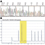 Thumbnail of DNA sequence electropherograms for neuraminidase (NA) gene sequences. A) Analysis of molecular markers (V116, I117, E119, Q136, K150, D151, D198, I223, H275, and N295) for oseltamivir and/or zanamivir resistance among the pandemic (H1N1) 2009 virus isolates. The oseltamivir resistance–conferring mutation CAC (histidine) to TAC (tyrosine) at position 275 was detected in the InDRE797 sample. B) Detection of the H275Y mutation in the NA of the viruses by single-nucleotide polymorphism