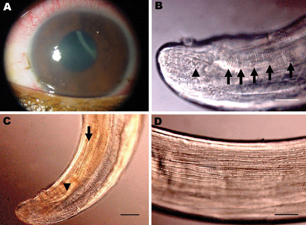 Corneal edema and episcleral hyperemia in the left eye of a 16-year-old boy from Brazil and a free-swimming filarid in the anterior chamber. A) Macroscopic view. B) Five pairs of ovoid pre-cloacal papillae (arrows) and 1 postcloacal caudal papillae (arrowhead). Scale bar = 50 µm. C) Small (arrowhead) and large (arrow) spicules. Scale bar = 40 µm. D) Longitudinal ridges of the area rugosa. Scale bar = 50 µm.