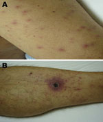 Thumbnail of Evidence of acute infection of the skin and subcutaneous tissue in patient admitted for treatment of scrub typhus-like symptoms in Chile. A) Rash on admission, left arm. B) Necrotizing eschar with erythematous halo over the left leg.