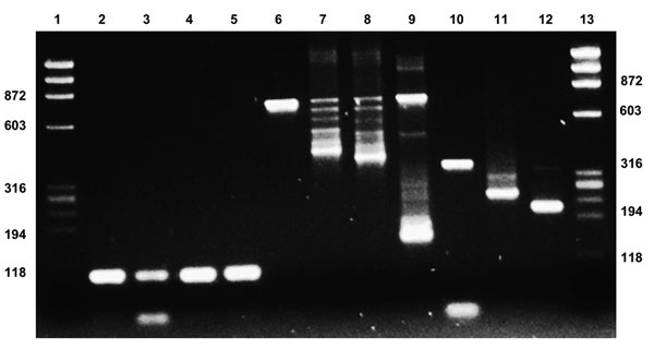 Testing for xenotropic murine leukemia virus–related virus (XMRV) in patients with fibromyalgia. Lanes 1 and 13, molecular weight marker ΦX174RF HaeIII; lanes 2–5, hBG for patients 1–4 (primers: hBG-FI-170/hBG-RI-273 (103 bp); lanes 6–12, positive control (pcDNA3.1-XMRV-Vp62) 1,000 copies (lanes 6 and 10) and 100 copies (lanes 7–9 and 11–12); lane 6, primers gag 419F/1154R (735 bp); lane 7, primers gag MLV-GAG-I-F/MLV-GAG-I-R (413 bp); lane 8, primers gag MLV-NP116/MLV-NP117 (380 bp); lane 9, pr
