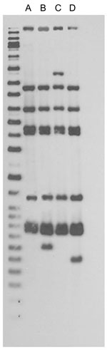 Thumbnail of IS6110 restriction fragment length polymorphism patterns for tuberculosis patients, New York, New York, USA, 2003–2009. Left lane, molecular mass ladder; lane A, n = 48; lane B, n = 1; lane C, n = 1; lane D, n = 4. Spoligotype results (octal code designation) were 777777774020771 for 54 patients. Twelve-loci mycobacterial interspersed repetitive-unit variable-number tandem repeat results were 225313153321 for 53 patients and 2253131–3321 for 1 patient; the dash indicates that there