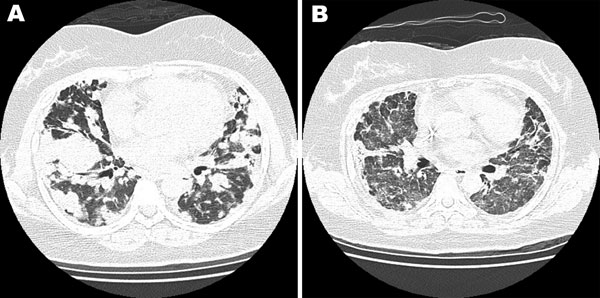 Chest computed tomography scan of a 40-year-old woman with no history of systemic disease. A) Bilateral multiple lung nodules and lymphomatoid granulomatosis were diagnosed after lung biopsy. B) After rituximab treatment, the prior nodular lung lesions decreased dramatically, but newly developed interstitial ground glass opacities appeared.