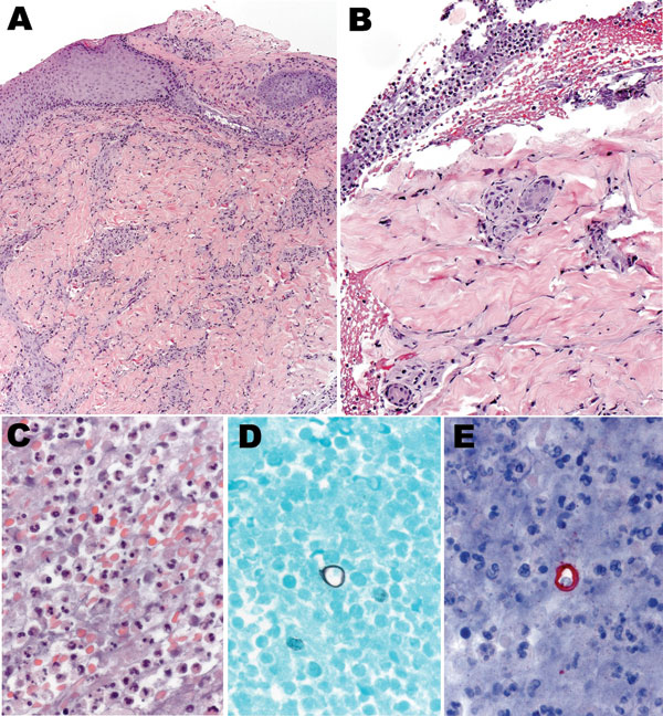 Histologic appearance of the cutaneous lesion of a man with blastomycosis. Ulcerated epidermis (A) showing superficial and deep perivascular infiltrates, predominantly mononuclear inflammatory cells. Fibrinopurulent exudate (B) adjacent to the ulcer, comprising neutrophils, erythrocytes, and necrotic cellular debris (C), and occasional large yeasts morphologically compatible with Blastomyces dermatitidis infection (D and E). Hematoxylin and eosin stain (A, B, and C), Grocott methenamine silver s