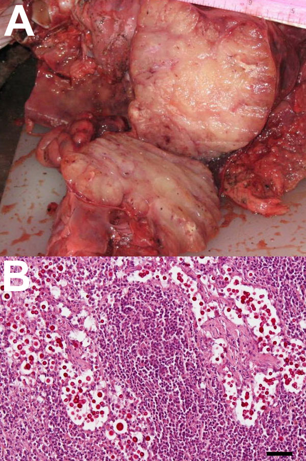 A. A) Enlarged mediastinal lymph nodes of a stranded, pregnant, harbor porpoise (Phocoena phocoena) infected with Cryptococcus gattii that was transmitted to its fetus. B) Mucicarmine–stained sections of fetal mediastinal lymph node, showing C. gattii extracellular yeast aggregates (original magnification ×20). Scale bar = 50 μm.