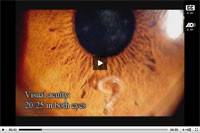 Thumbnail of Surgical removal of a Pelecitus sp. nematode from the left eye of a 29-year-old man, Brazil. A portion of the material in this video was previously published in the journal Parasites and Vectors (http://www.parasitesandvectors.com/content/pdf/1756-3305-4-41.pdf).