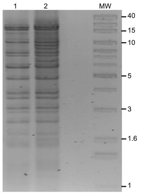 BglII restriction digests of New Delhi metallo-β-lactamase (pNDM)–Kp10469 (lane 1) and pNDM-Ec10505 (lane 2). MW, 1-kb extension ladder molecular mass marker (Invitrogen, Carlsbad, CA, USA). Sizes (kb) are indicated for some bands.