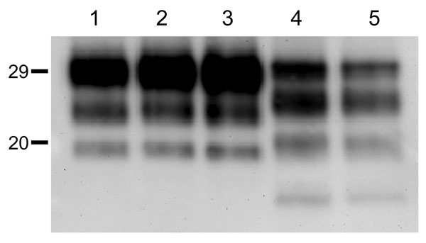 Western blot analyses of brain protease-resistant prion protein (PrPres) from BSE-H infected mice by using Saf84 monoclonal antibody. Tg110 mice infected with isolate 02-2695 (lanes 2 and 3) or 45 (lane 4) at first passage showing either high-type (lane 2) or classical BSE–like PrPres molecular profile (lanes 3 and 4). The BSE-H isolate (02–2695) (lane 1) and a BSE-C isolate (lane 5) were included for comparison. Similar quantities of PrPres were loaded in each lane. Values to the left indicate
