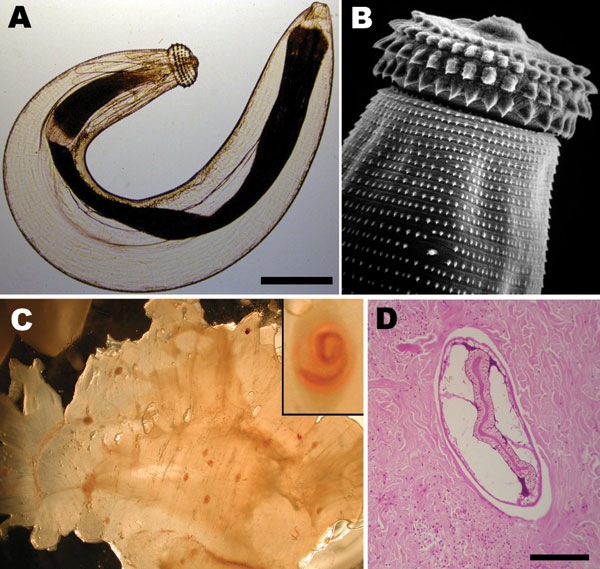 A) Third-stage larva of the nematode Gnathostoma sp. Scale bar = 250 µm. B) Scanning electronic microscopy image depicting head bulb with 4 cephalic hooklet rows. Original magnification ×500. C) Gnathostoma sp. larvae in the flesh of their intermediate host, Eleotris picta fish. Original magnification ×4. Inset: Higher magnification of an encysted larva; original magnification ×100. Larvae photographs courtesy of Dr Diaz-Camacho, Universidad Autónoma de Sinaloa, Sinaloa, Mexico. D) Cross section