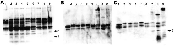 Western blot analysis of 10 μL of bacterial suspension (1.8 × 1010 CFU/mL) loaded to a gel and subjected to electrophoresis. The proteins were transferred onto a nitrocellulose membrane, which was incubated in mouse or human serum as described in Materials and Methods. Serum samples used were convalescent-phase serum of the Bordetella petrii–infected patient (A), a pool of serum specimens from B. pertussis–infected patients (B), and a pool of serum specimens from B. bronchiseptica–infected patie