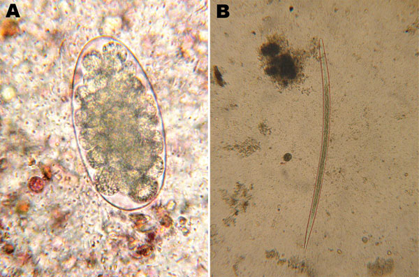 Trichostrongylus colubriformis nematode isolated from feces of a 47-year-old woman, France. A) Egg (length 89 µm) isolated by using direct examination (original magnification ×200). B) Third-stage larvae (length 740 µm, 16 intestinal cells, length of distal part of the sheath <40 µm) isolated by using fecal culture (original magnification ×50).